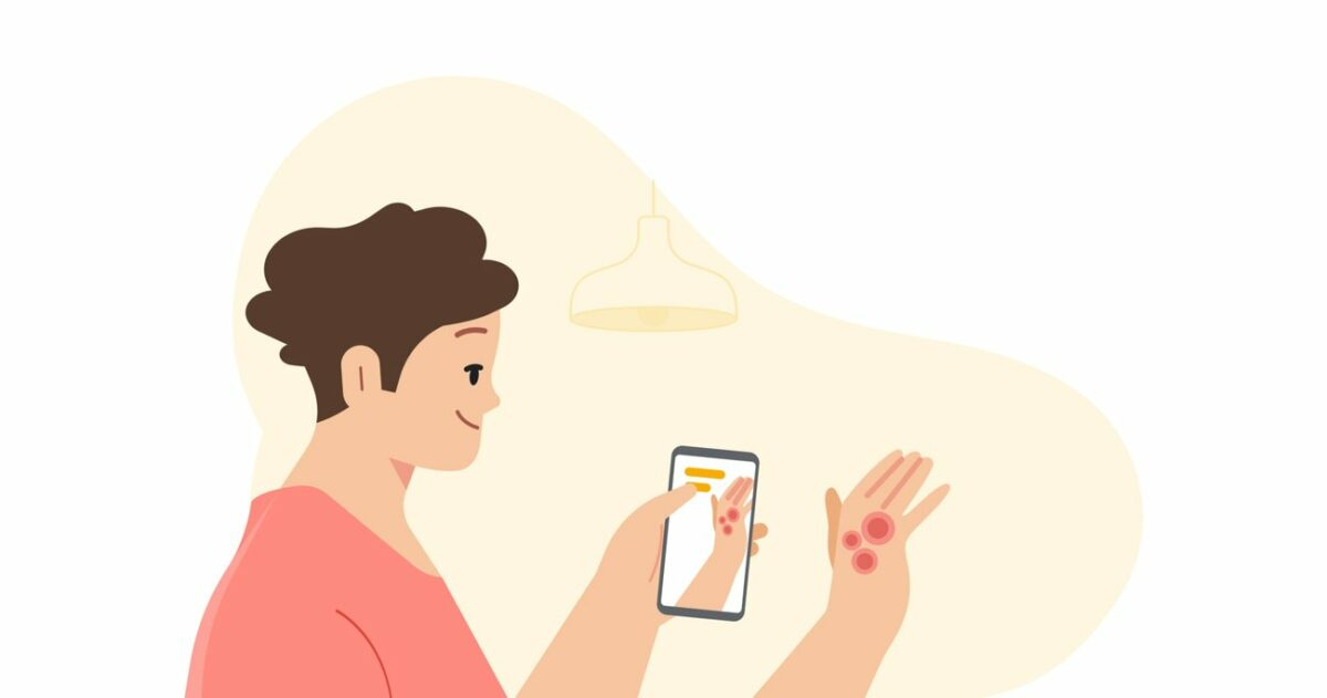 Using AI to help find answers to common skin conditions